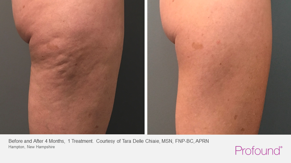 profound Cellulite reduction before after